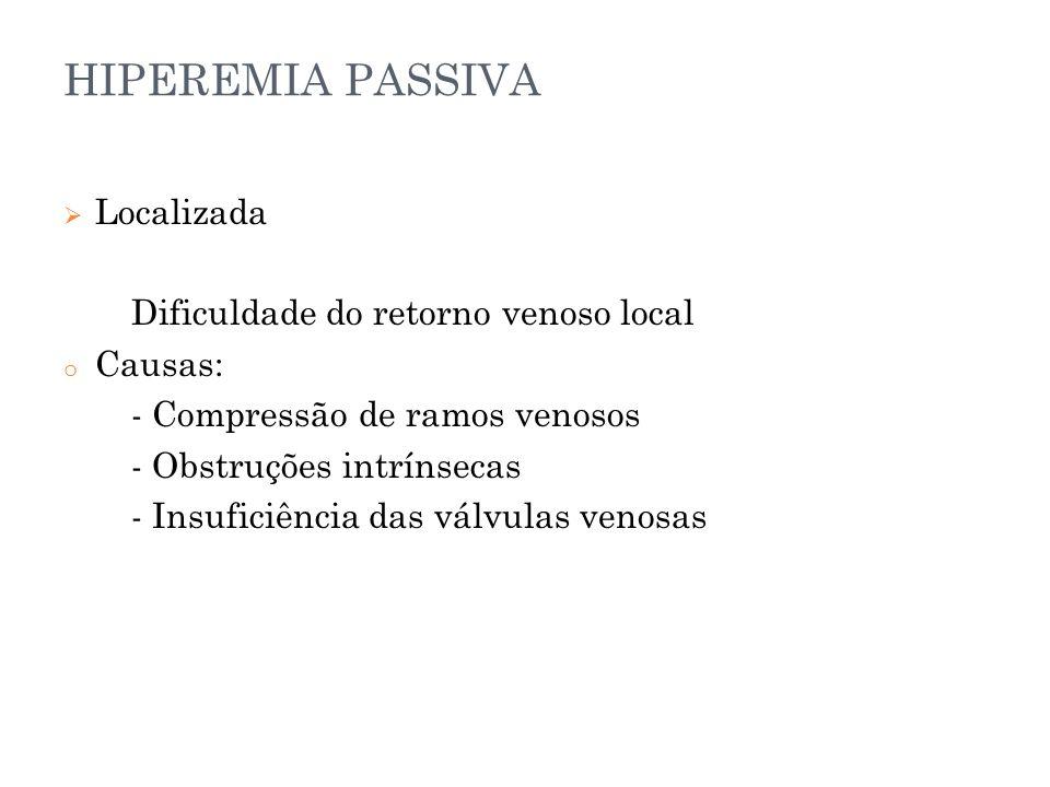 HIPEREMIA PASSIVA  Localizada Dificuldade do retorno venoso local o Causas: - Compressão de ramos venosos - Obstruções intrínsecas - Insuficiência da