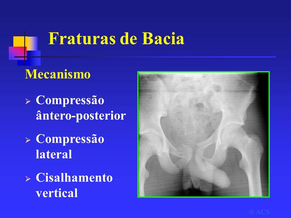  ACS Fraturas de Bacia Mecanismo  Compressão ântero-posterior  Compressão lateral  Cisalhamento vertical