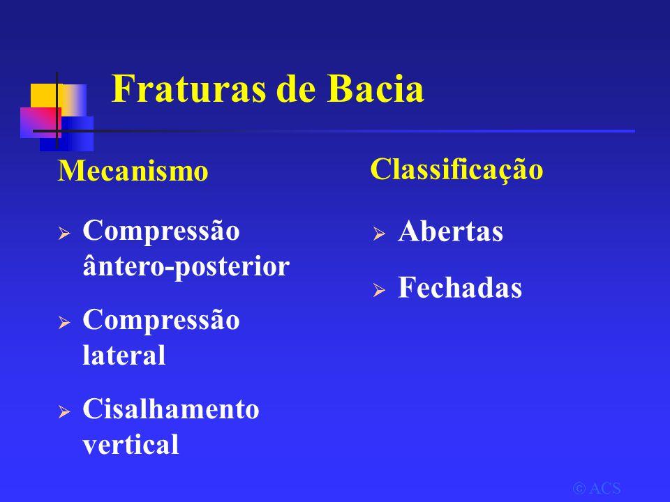  ACS Fraturas de Bacia Mecanismo  Compressão ântero-posterior  Compressão lateral  Cisalhamento vertical Classificação  Abertas  Fechadas