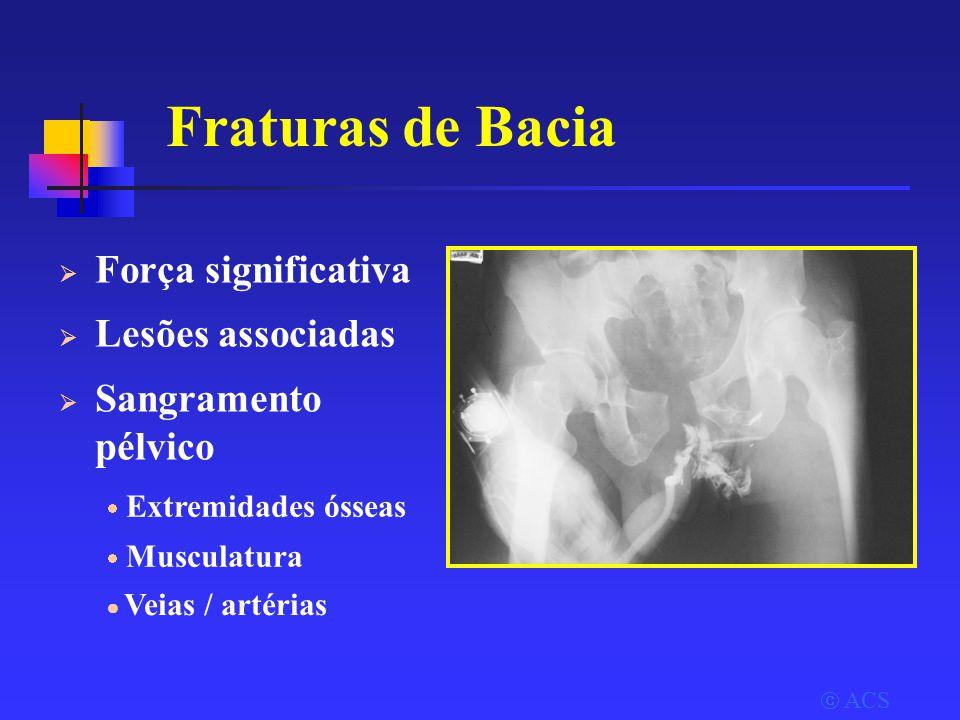  ACS Fraturas de Bacia  Força significativa  Lesões associadas  Sangramento pélvico  Extremidades ósseas  Musculatura  Veias / artérias