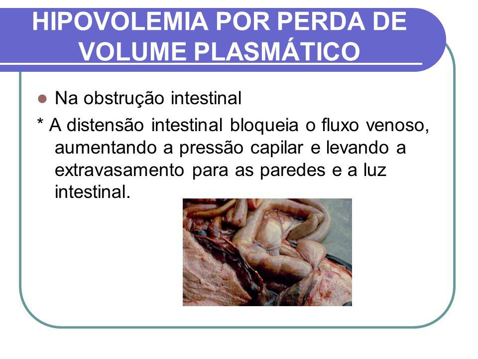 HIPOVOLEMIA POR PERDA DE VOLUME PLASMÁTICO Na obstrução intestinal * A distensão intestinal bloqueia o fluxo venoso, aumentando a pressão capilar e le