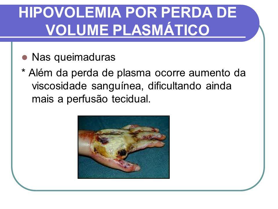 HIPOVOLEMIA POR PERDA DE VOLUME PLASMÁTICO Nas queimaduras * Além da perda de plasma ocorre aumento da viscosidade sanguínea, dificultando ainda mais