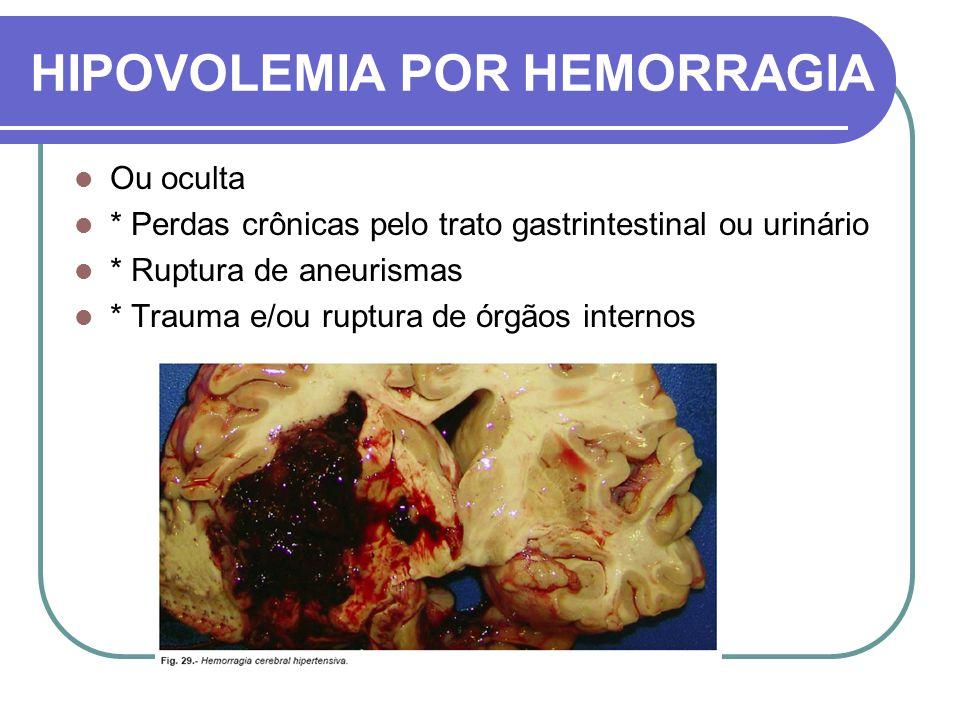 HIPOVOLEMIA POR HEMORRAGIA Ou oculta * Perdas crônicas pelo trato gastrintestinal ou urinário * Ruptura de aneurismas * Trauma e/ou ruptura de órgãos