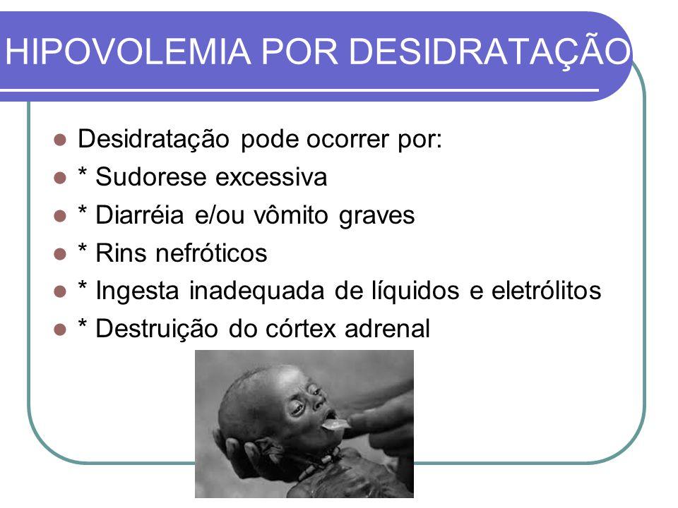 HIPOVOLEMIA POR DESIDRATAÇÃO Desidratação pode ocorrer por: * Sudorese excessiva * Diarréia e/ou vômito graves * Rins nefróticos * Ingesta inadequada