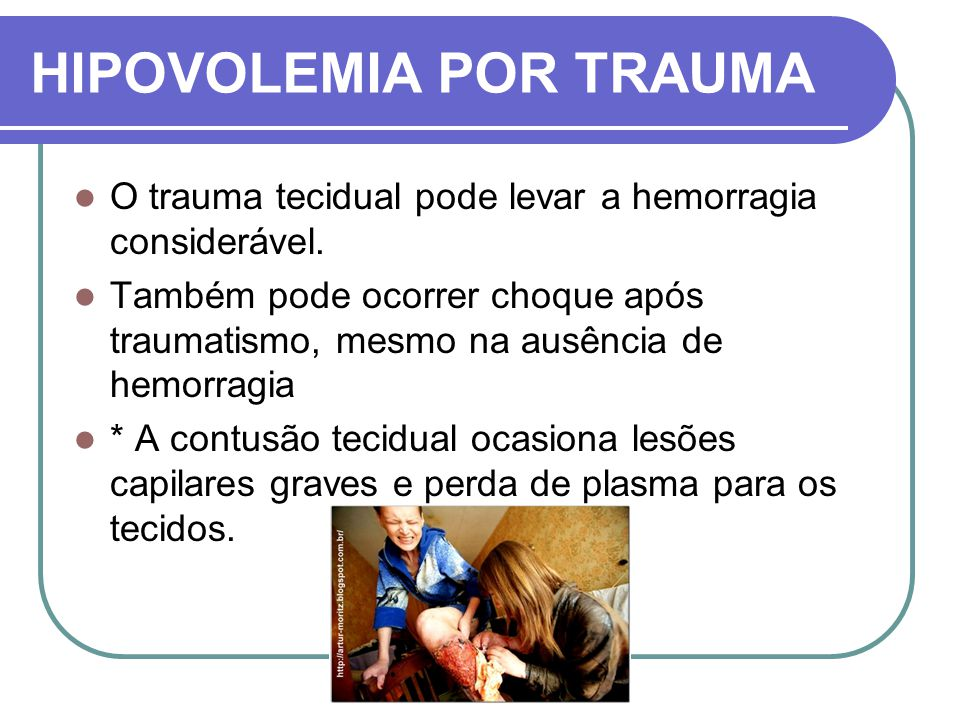 HIPOVOLEMIA POR TRAUMA O trauma tecidual pode levar a hemorragia considerável. Também pode ocorrer choque após traumatismo, mesmo na ausência de hemor