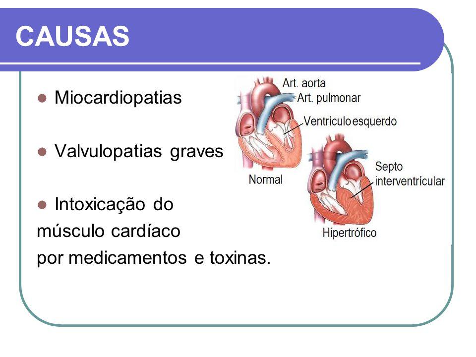 CAUSAS Miocardiopatias Valvulopatias graves Intoxicação do músculo cardíaco por medicamentos e toxinas.