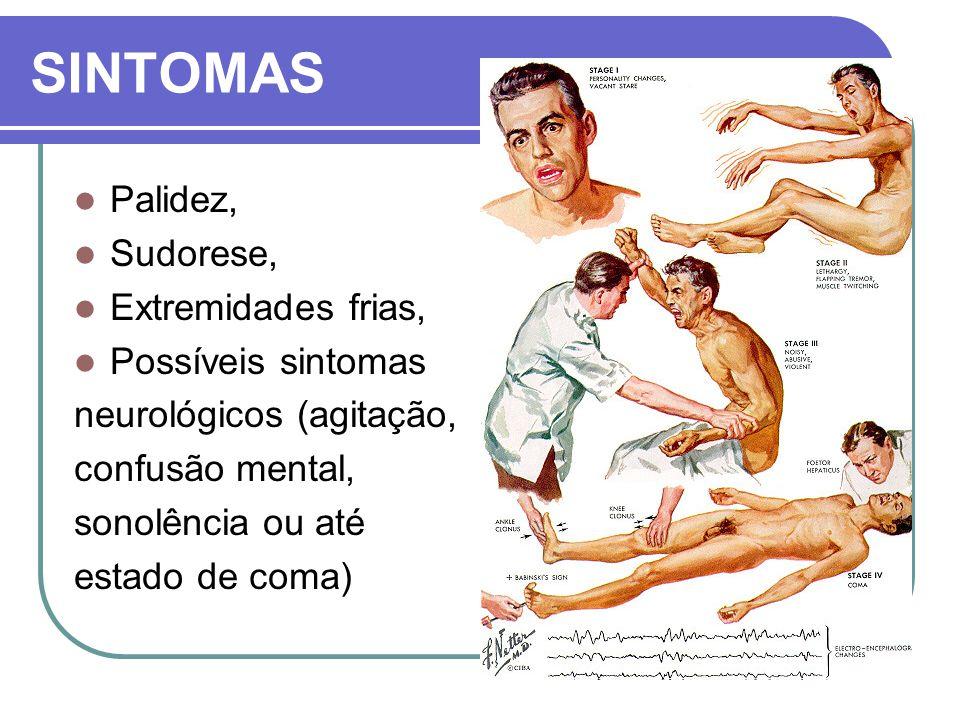 SINTOMAS Palidez, Sudorese, Extremidades frias, Possíveis sintomas neurológicos (agitação, confusão mental, sonolência ou até estado de coma)