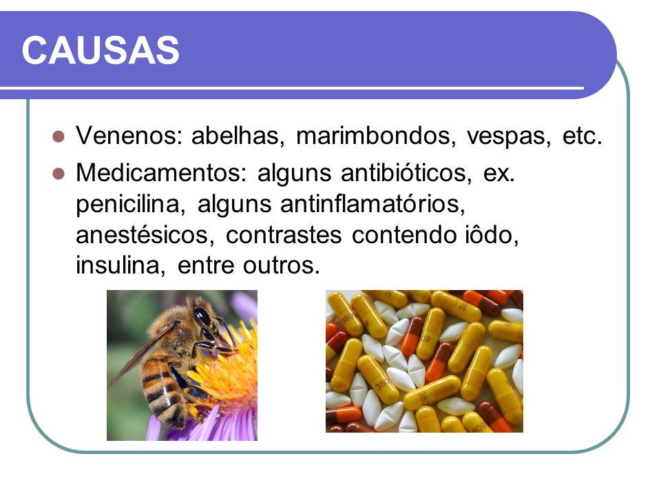 CAUSAS Venenos: abelhas, marimbondos, vespas, etc. Medicamentos: alguns antibióticos, ex. penicilina, alguns antinflamatórios, anestésicos, contrastes