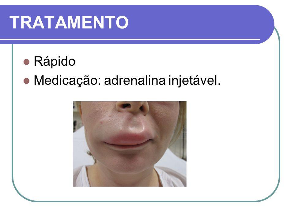 TRATAMENTO Rápido Medicação: adrenalina injetável.