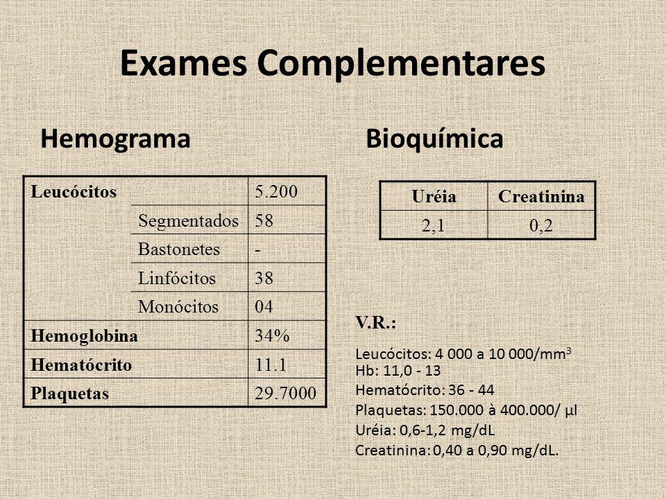Exames Complementares Hemograma Bioquímica Leucócitos5.200 Segmentados58 Bastonetes- Linfócitos38 Monócitos04 Hemoglobina34% Hematócrito11.1 Plaquetas29.7000 UréiaCreatinina 2,10,2 V.R.: Leucócitos: 4 000 a 10 000/mm 3 Hb: 11,0 - 13 Hematócrito: 36 - 44 Plaquetas: 150.000 à 400.000/ µl Uréia: 0,6-1,2 mg/dL Creatinina: 0,40 a 0,90 mg/dL.