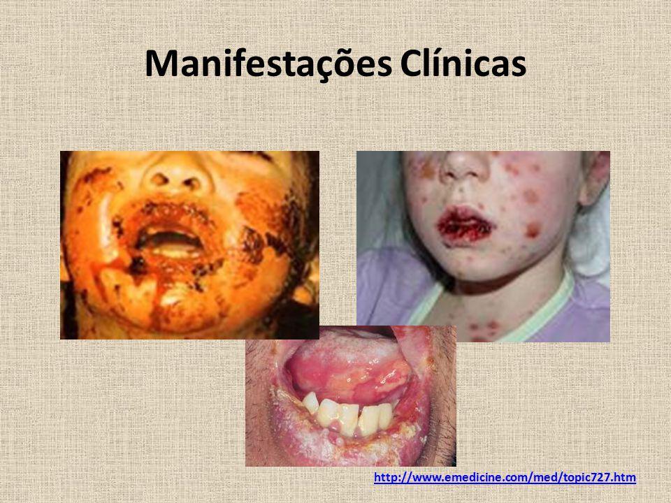 Manifestações Clínicas http://www.emedicine.com/med/topic727.htm