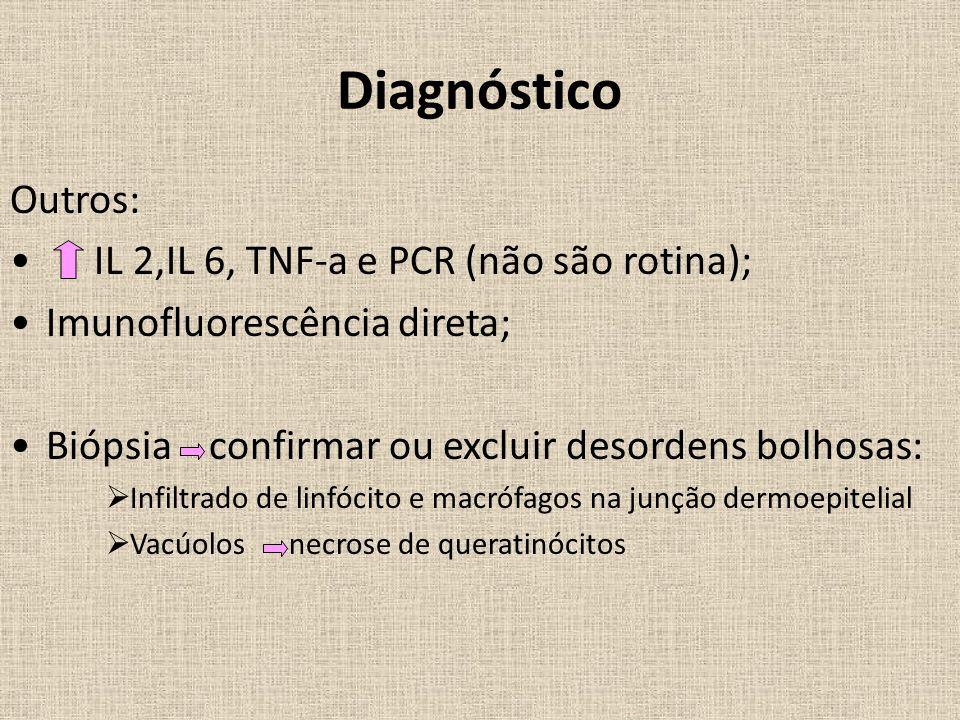 Diagnóstico Outros: IL 2,IL 6, TNF-a e PCR (não são rotina); Imunofluorescência direta; Biópsia confirmar ou excluir desordens bolhosas:  Infiltrado de linfócito e macrófagos na junção dermoepitelial  Vacúolos necrose de queratinócitos