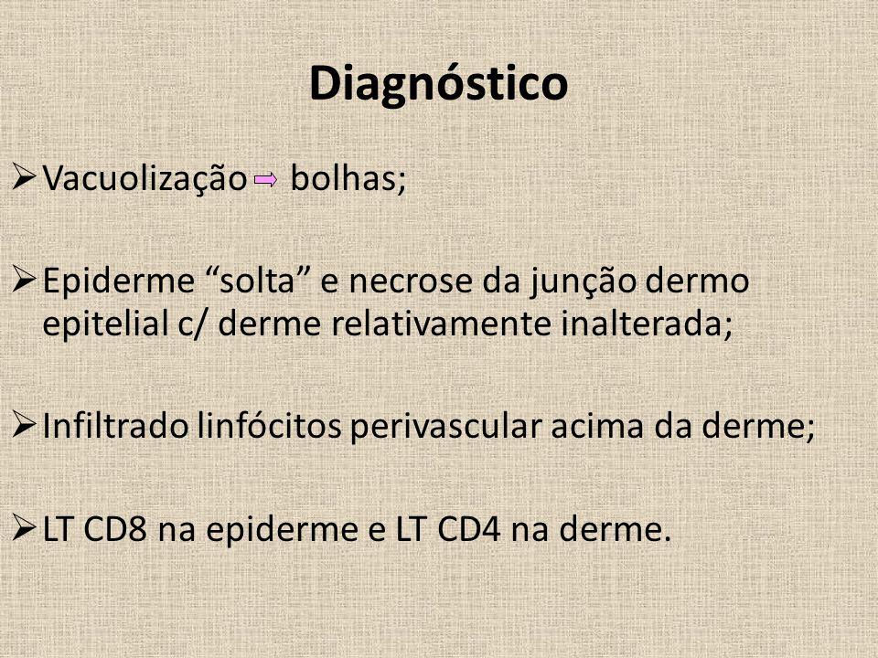 Diagnóstico  Vacuolização bolhas;  Epiderme solta e necrose da junção dermo epitelial c/ derme relativamente inalterada;  Infiltrado linfócitos perivascular acima da derme;  LT CD8 na epiderme e LT CD4 na derme.