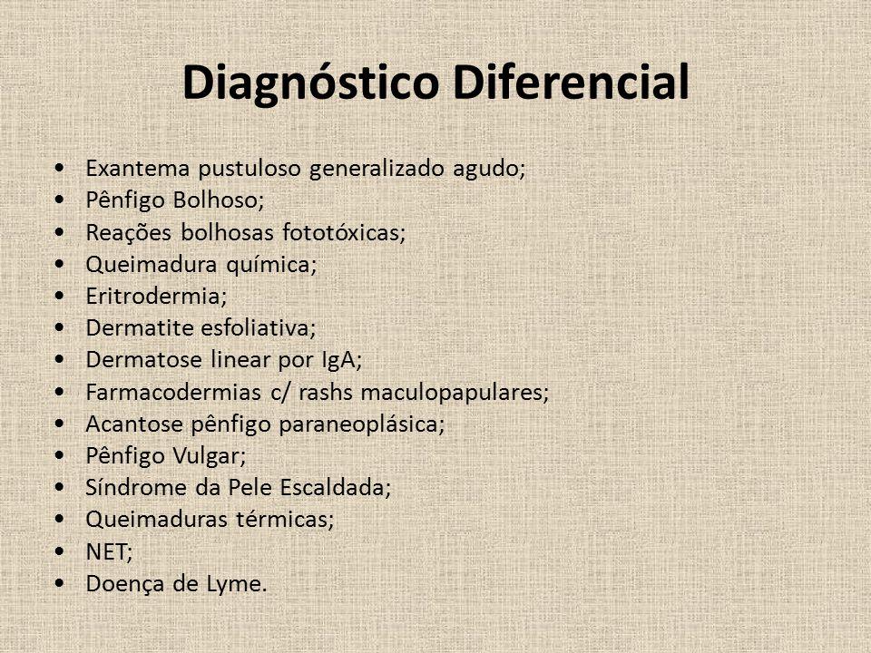 Diagnóstico Diferencial Exantema pustuloso generalizado agudo; Pênfigo Bolhoso; Reações bolhosas fototóxicas; Queimadura química; Eritrodermia; Dermatite esfoliativa; Dermatose linear por IgA; Farmacodermias c/ rashs maculopapulares; Acantose pênfigo paraneoplásica; Pênfigo Vulgar; Síndrome da Pele Escaldada; Queimaduras térmicas; NET; Doença de Lyme.