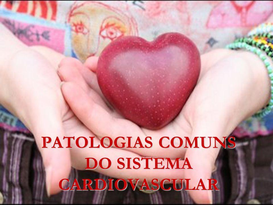 Classificação Existem a Insuficiência Cardíaca Aguda (ICA) e a Insuficiência Cardíaca Congestiva (ICC).