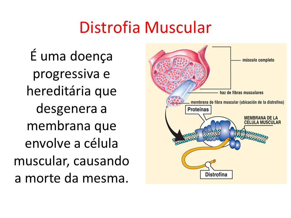 Distrofia Muscular É uma doença progressiva e hereditária que desgenera a membrana que envolve a célula muscular, causando a morte da mesma.
