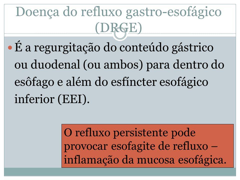 Doença do refluxo gastro-esofágico (DRGE) É a regurgitação do conteúdo gástrico ou duodenal (ou ambos) para dentro do esôfago e além do esfíncter esofágico inferior (EEI).