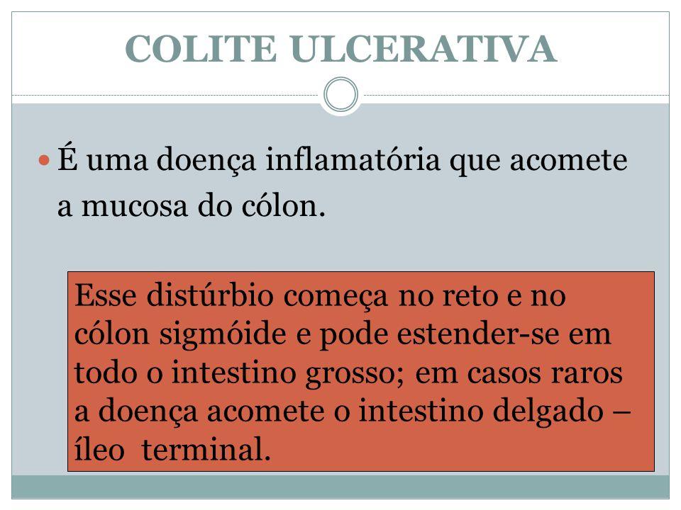 COLITE ULCERATIVA É uma doença inflamatória que acomete a mucosa do cólon. Esse distúrbio começa no reto e no cólon sigmóide e pode estender-se em tod