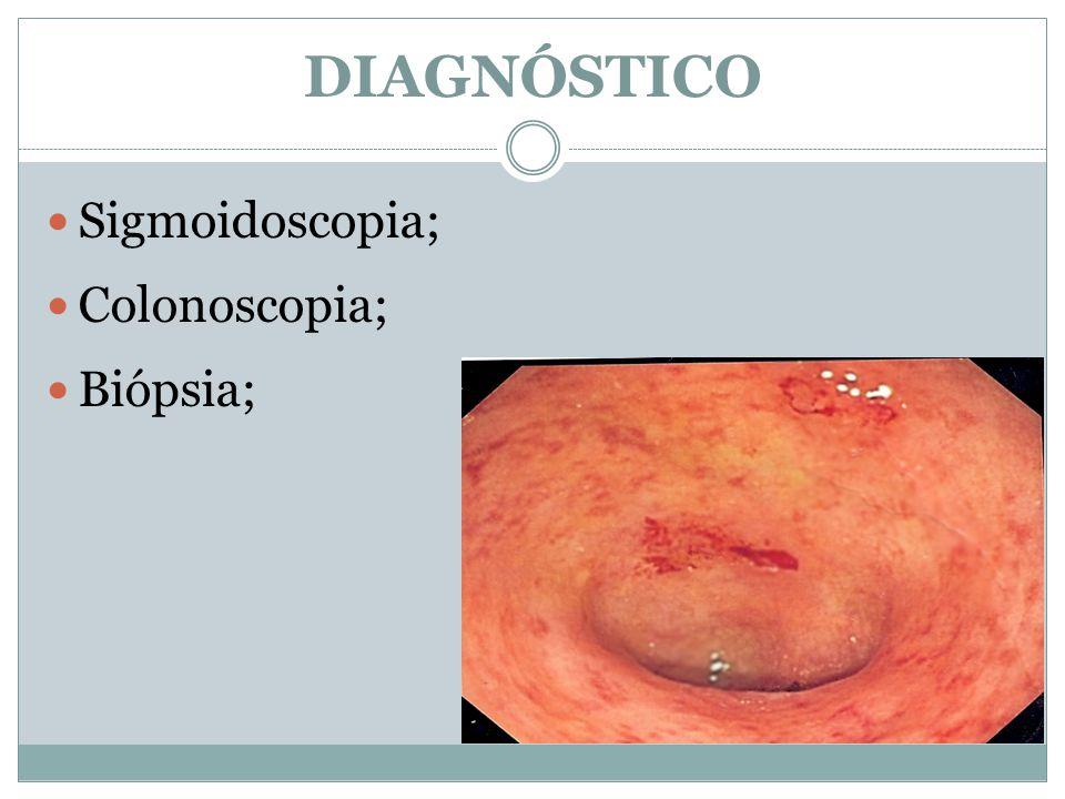 Sigmoidoscopia; Colonoscopia; Biópsia; DIAGNÓSTICO