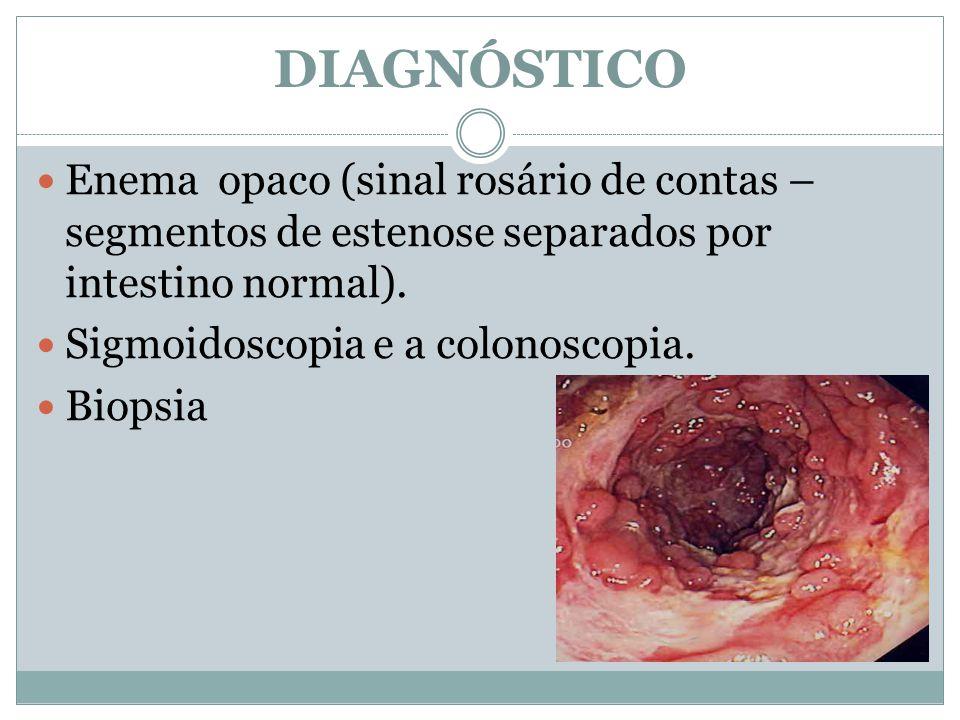 Enema opaco (sinal rosário de contas – segmentos de estenose separados por intestino normal). Sigmoidoscopia e a colonoscopia. Biopsia DIAGNÓSTICO