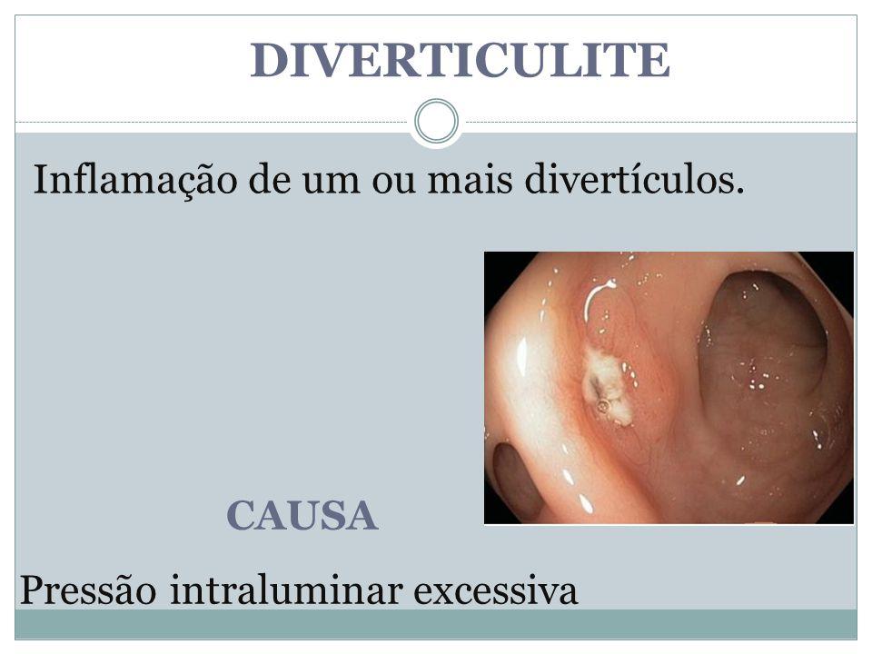 DIVERTICULITE Inflamação de um ou mais divertículos. CAUSA Pressão intraluminar excessiva
