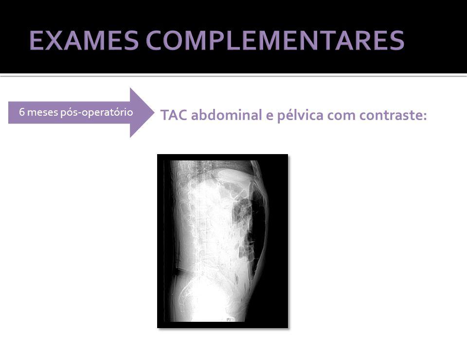 TAC abdominal e pélvica com contraste: 6 meses pós-operatório