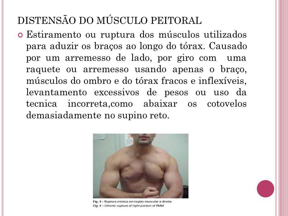 DISTENSÃO DO MÚSCULO PEITORAL Estiramento ou ruptura dos músculos utilizados para aduzir os braços ao longo do tórax. Causado por um arremesso de lado