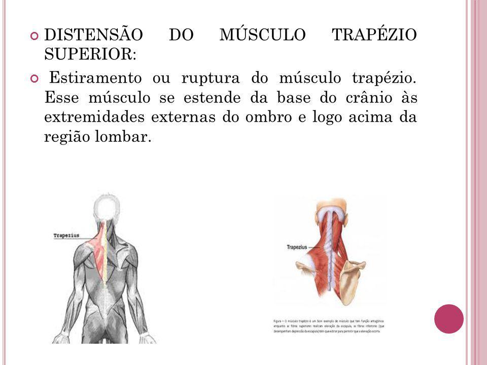 DISTENSÃO DO MÚSCULO TRAPÉZIO SUPERIOR: Estiramento ou ruptura do músculo trapézio. Esse músculo se estende da base do crânio às extremidades externas