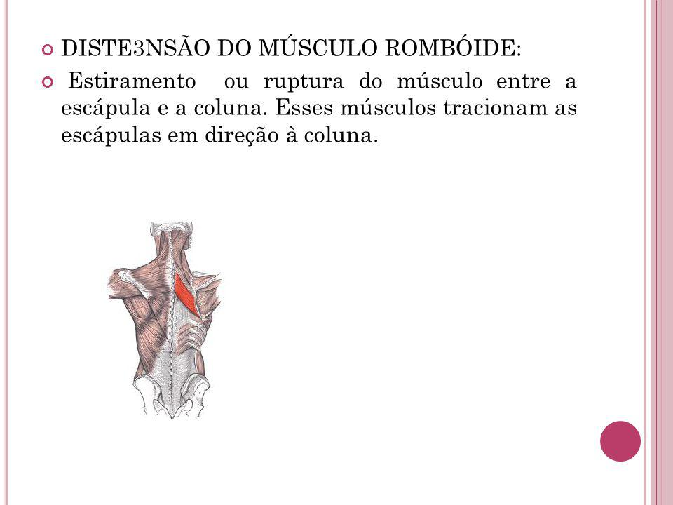 DISTE3NSÃO DO MÚSCULO ROMBÓIDE: Estiramento ou ruptura do músculo entre a escápula e a coluna. Esses músculos tracionam as escápulas em direção à colu