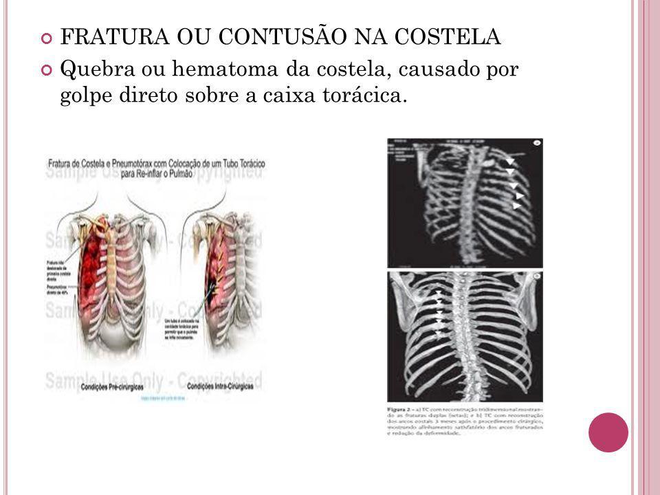 FRATURA OU CONTUSÃO NA COSTELA Quebra ou hematoma da costela, causado por golpe direto sobre a caixa torácica.