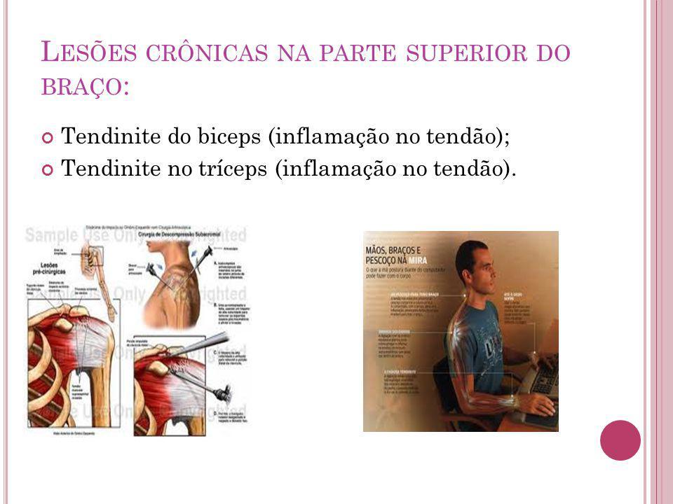 L ESÕES CRÔNICAS NA PARTE SUPERIOR DO BRAÇO : Tendinite do biceps (inflamação no tendão); Tendinite no tríceps (inflamação no tendão).