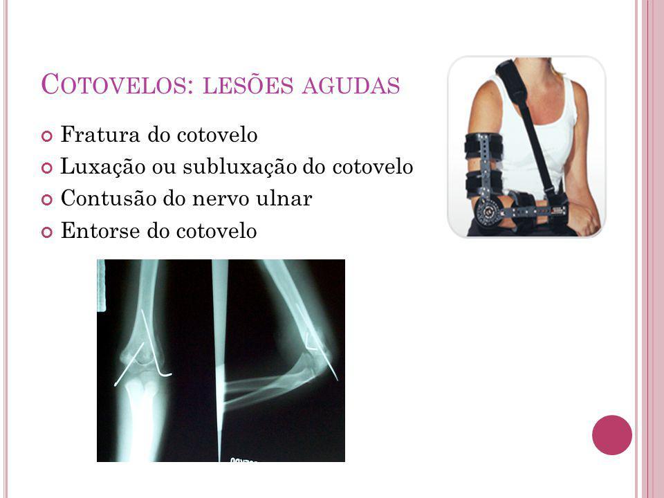 C OTOVELOS : LESÕES AGUDAS Fratura do cotovelo Luxação ou subluxação do cotovelo Contusão do nervo ulnar Entorse do cotovelo