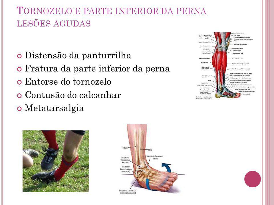 T ORNOZELO E PARTE INFERIOR DA PERNA LESÕES AGUDAS Distensão da panturrilha Fratura da parte inferior da perna Entorse do tornozelo Contusão do calcanhar Metatarsalgia