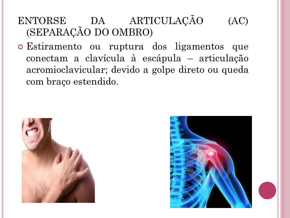 ENTORSE DA ARTICULAÇÃO (AC) (SEPARAÇÃO DO OMBRO) Estiramento ou ruptura dos ligamentos que conectam a clavícula à escápula – articulação acromioclavicular; devido a golpe direto ou queda com braço estendido.