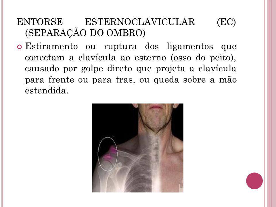 ENTORSE ESTERNOCLAVICULAR (EC) (SEPARAÇÃO DO OMBRO) Estiramento ou ruptura dos ligamentos que conectam a clavícula ao esterno (osso do peito), causado por golpe direto que projeta a clavícula para frente ou para tras, ou queda sobre a mão estendida.