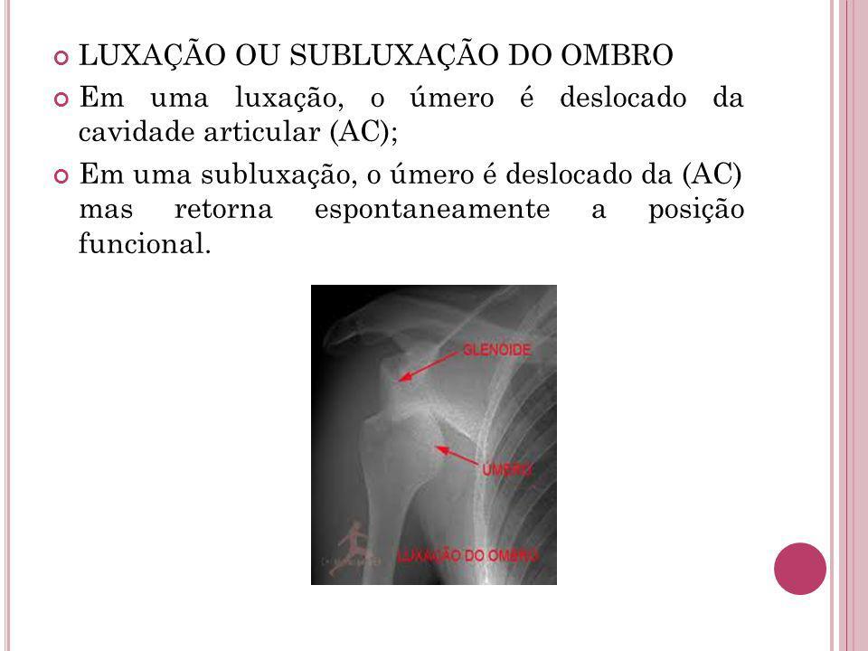 LUXAÇÃO OU SUBLUXAÇÃO DO OMBRO Em uma luxação, o úmero é deslocado da cavidade articular (AC); Em uma subluxação, o úmero é deslocado da (AC) mas reto