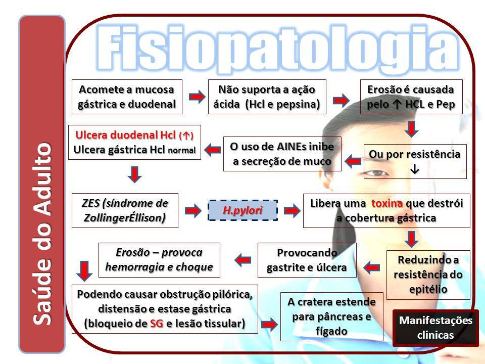 Saúde do Adulto Saúde do Adulto Acomete a mucosa gástrica e duodenal Não suporta a ação ácida (Hcl e pepsina) Erosão é causada pelo ↑ HCL e Pep Ou por