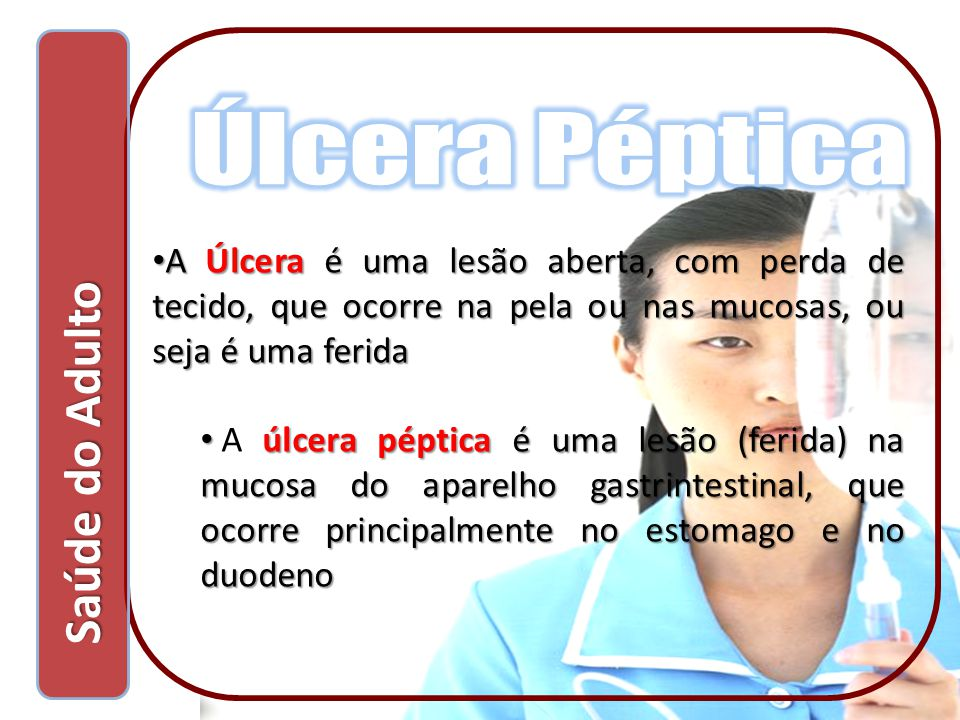 A Úlcera é uma lesão aberta, com perda de tecido, que ocorre na pela ou nas mucosas, ou seja é uma ferida A Úlcera é uma lesão aberta, com perda de te