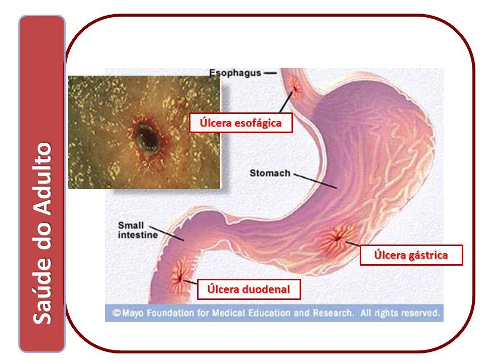 Saúde do Adulto Saúde do Adulto Úlcera gástrica Úlcera duodenal Úlcera esofágica