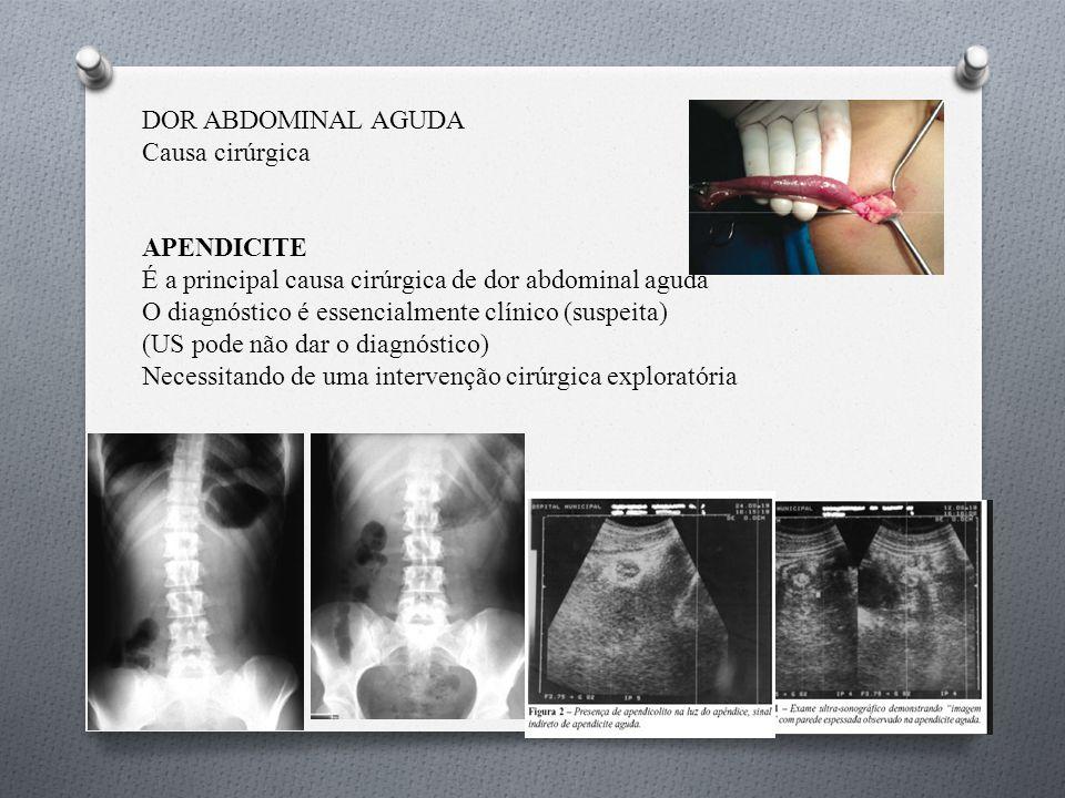 DOR ABDOMINAL AGUDA Causa cirúrgica APENDICITE É a principal causa cirúrgica de dor abdominal aguda O diagnóstico é essencialmente clínico (suspeita) (US pode não dar o diagnóstico) Necessitando de uma intervenção cirúrgica exploratória
