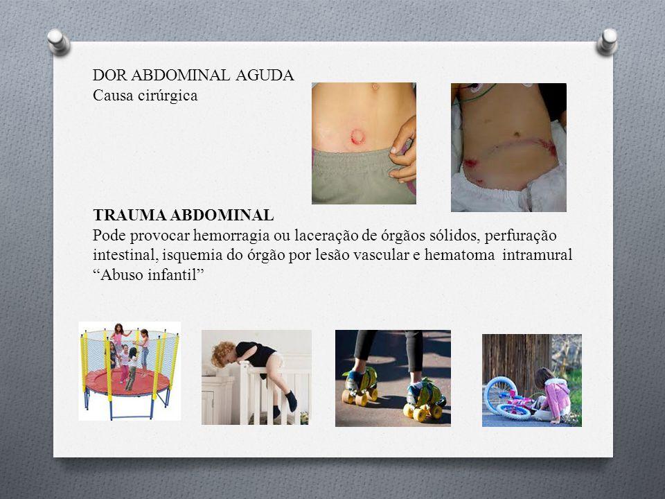 DOR ABDOMINAL AGUDA Causa cirúrgica TRAUMA ABDOMINAL Pode provocar hemorragia ou laceração de órgãos sólidos, perfuração intestinal, isquemia do órgão por lesão vascular e hematoma intramural Abuso infantil