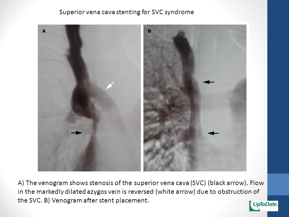 Superior vena cava stenting for SVC syndrome A) The venogram shows stenosis of the superior vena cava (SVC) (black arrow). Flow in the markedly dilate