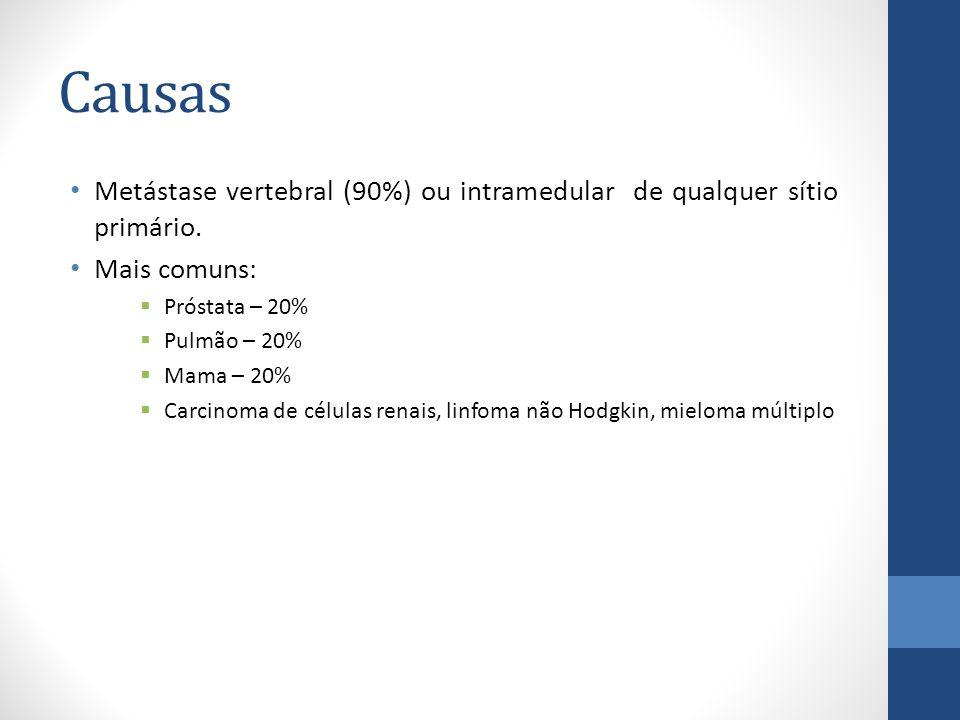 Causas Metástase vertebral (90%) ou intramedular de qualquer sítio primário.
