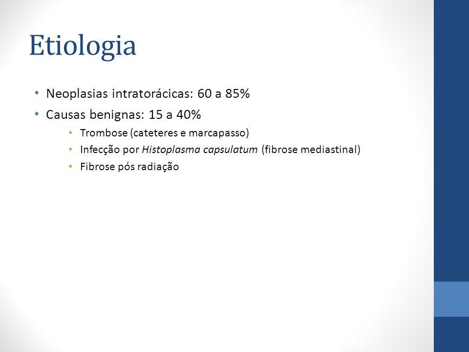Etiologia Neoplasias intratorácicas: 60 a 85% Causas benignas: 15 a 40% Trombose (cateteres e marcapasso) Infecção por Histoplasma capsulatum (fibrose mediastinal) Fibrose pós radiação