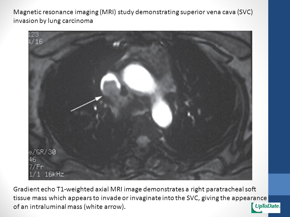 Magnetic resonance imaging (MRI) study demonstrating superior vena cava (SVC) invasion by lung carcinoma Gradient echo T1-weighted axial MRI image dem