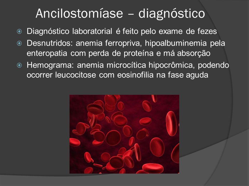 Ancilostomíase – diagnóstico  Diagnóstico laboratorial é feito pelo exame de fezes  Desnutridos: anemia ferropriva, hipoalbuminemia pela enteropatia com perda de proteína e má absorção  Hemograma: anemia microcítica hipocrômica, podendo ocorrer leucocitose com eosinofilia na fase aguda