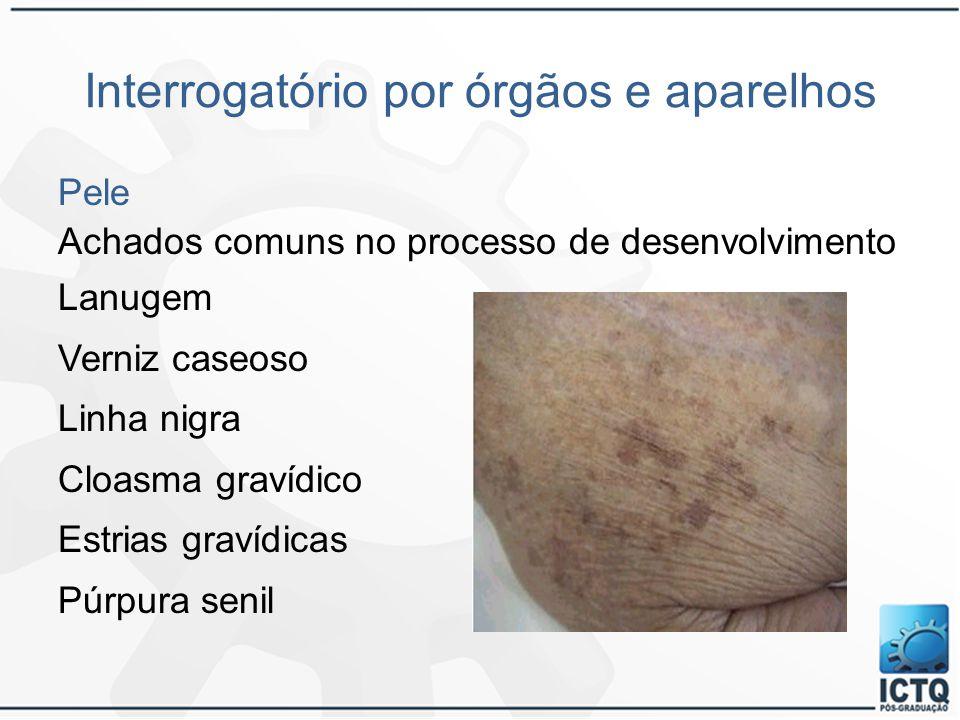 Interrogatório por órgãos e aparelhos Pele Achados comuns no processo de desenvolvimento Lanugem Verniz caseoso Linha nigra Cloasma gravídico Estrias