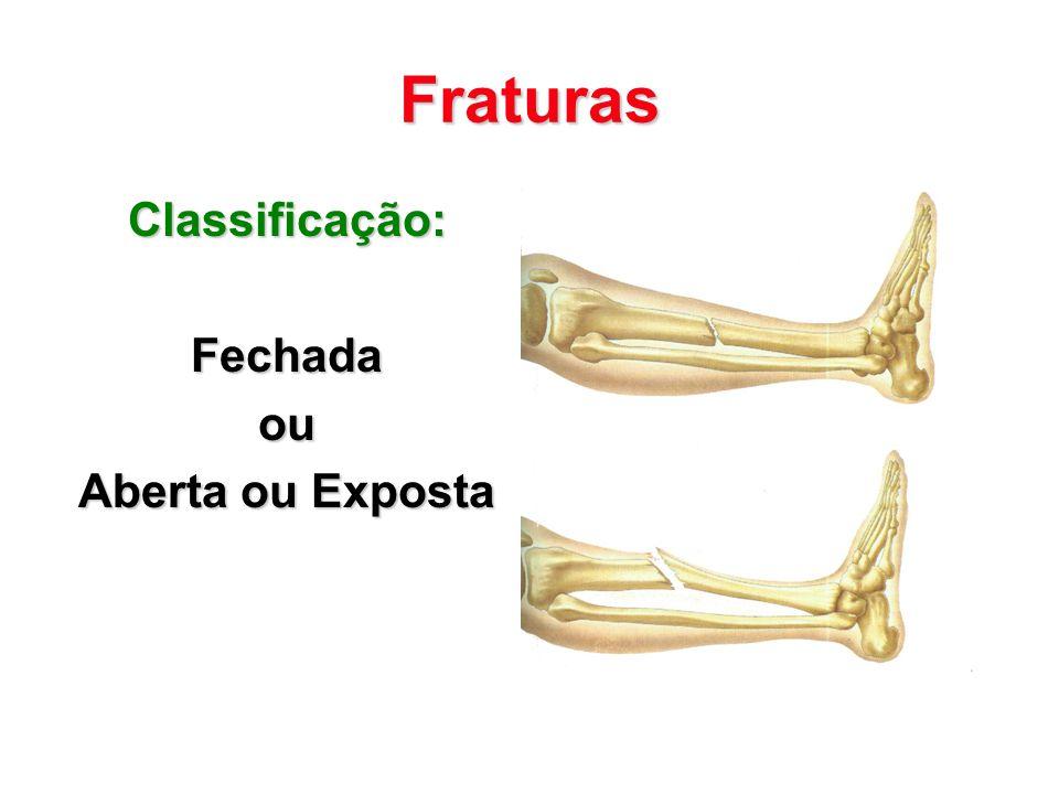 Fraturas Classificação:Fechadaou Aberta ou Exposta