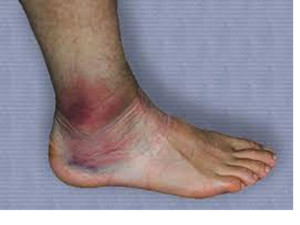 Luxação é o deslocamento de um osso da articulação, geralmente acompanhado de uma grave lesão de ligamentos articulares.