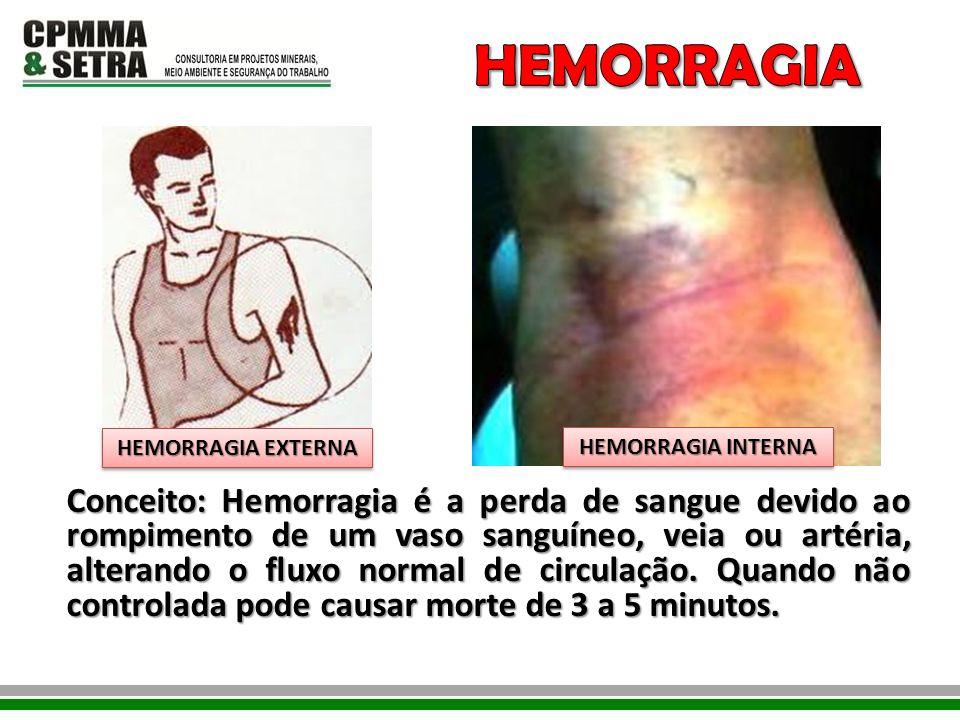 Conceito: Hemorragia é a perda de sangue devido ao rompimento de um vaso sanguíneo, veia ou artéria, alterando o fluxo normal de circulação. Quando nã